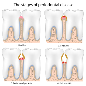 periodontal-disease-stages-300x300