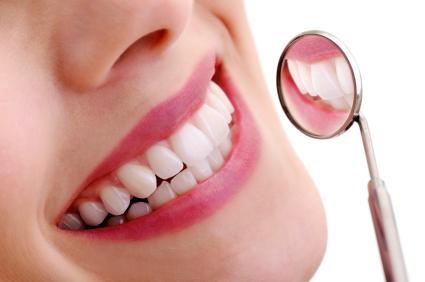 Dental-Lumineers