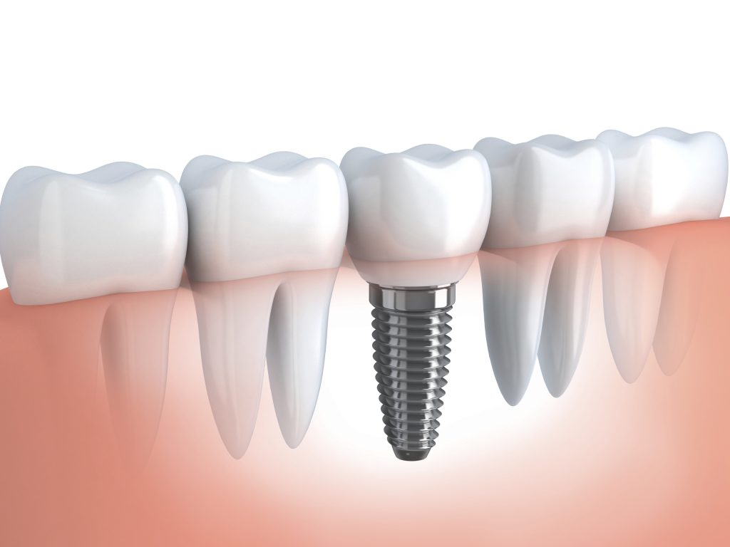 Considering Getting a Dental Implant? Here's What You Must Know!