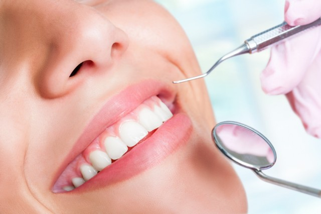 Dental 101: How It All Started with Dental Veneers